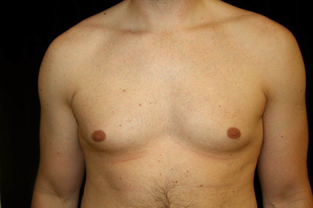 Gynecomastia Gallery - Patient 39245441 - Image 1