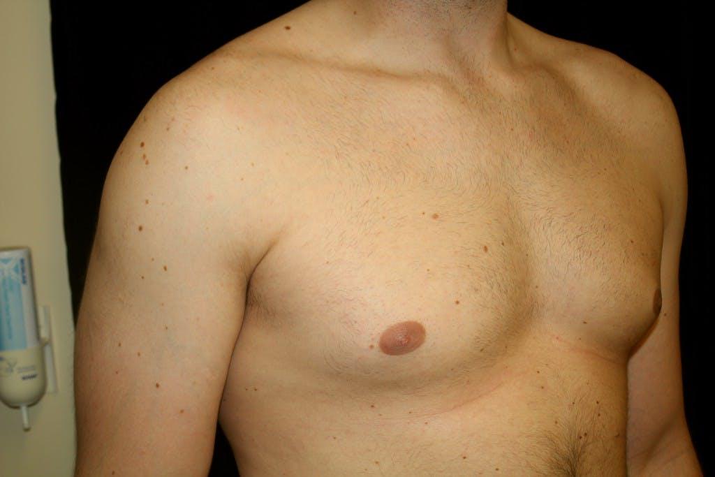 Gynecomastia Gallery - Patient 39245441 - Image 3