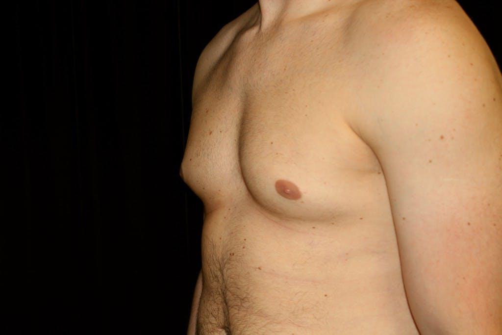 Gynecomastia Gallery - Patient 39245441 - Image 5