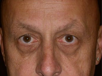 Eyelid Surgery Gallery - Patient 39245444 - Image 1