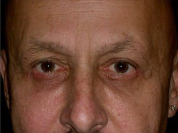 Eyelid Surgery Gallery - Patient 39245444 - Image 2