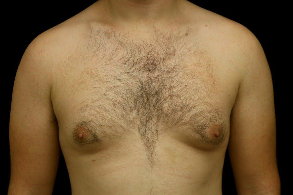 Gynecomastia Gallery - Patient 39245453 - Image 1