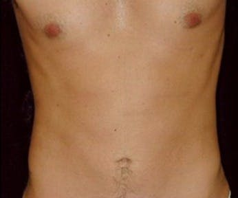 Liposuction Gallery - Patient 39245448 - Image 2