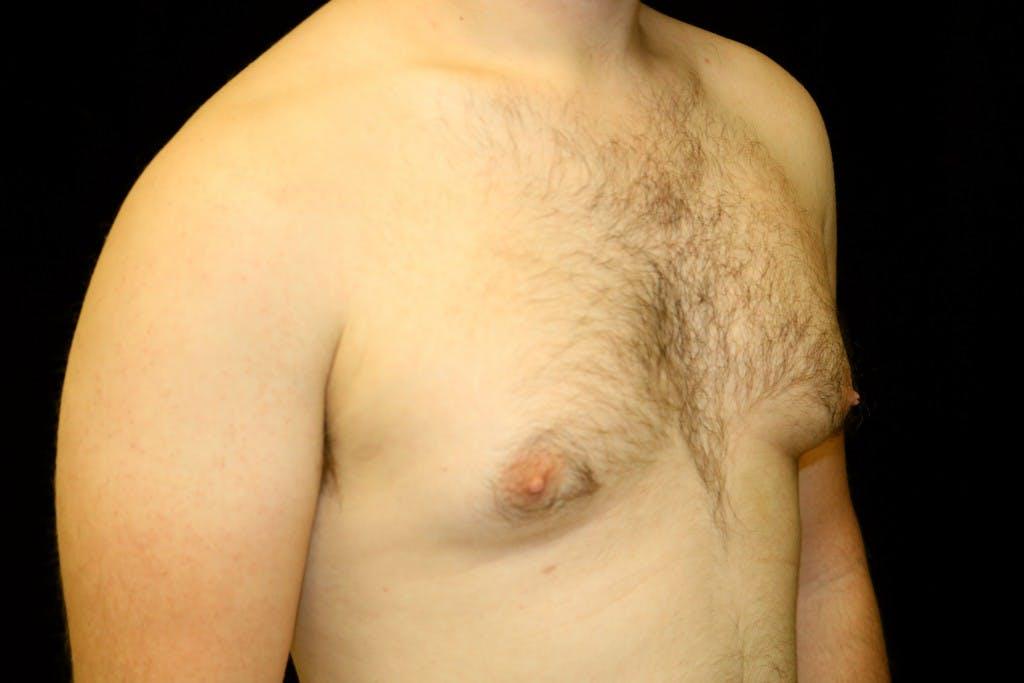 Gynecomastia Gallery - Patient 39245453 - Image 3