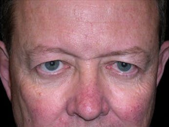 Eyelid Surgery Gallery - Patient 39245449 - Image 1
