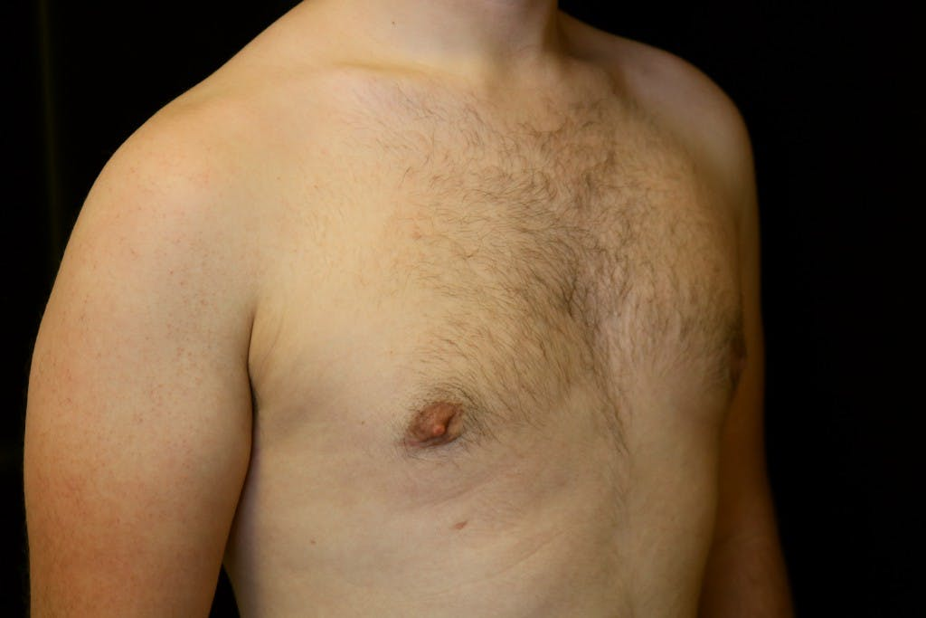 Gynecomastia Gallery - Patient 39245453 - Image 4