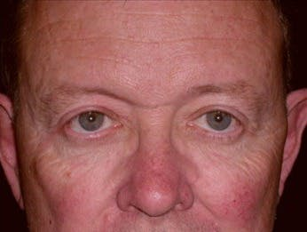 Eyelid Surgery Gallery - Patient 39245449 - Image 2