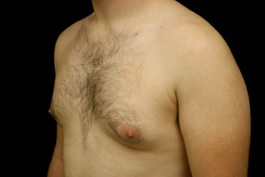 Gynecomastia Gallery - Patient 39245453 - Image 5