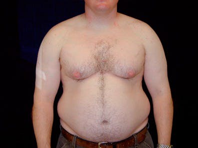 Daddy Makeover Gallery - Patient 39245452 - Image 1
