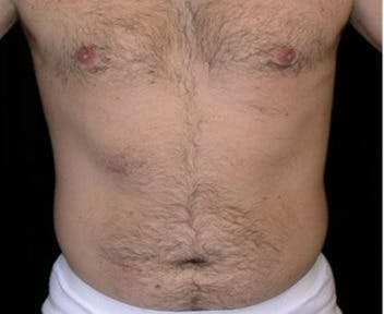 Liposuction Gallery - Patient 39245451 - Image 1