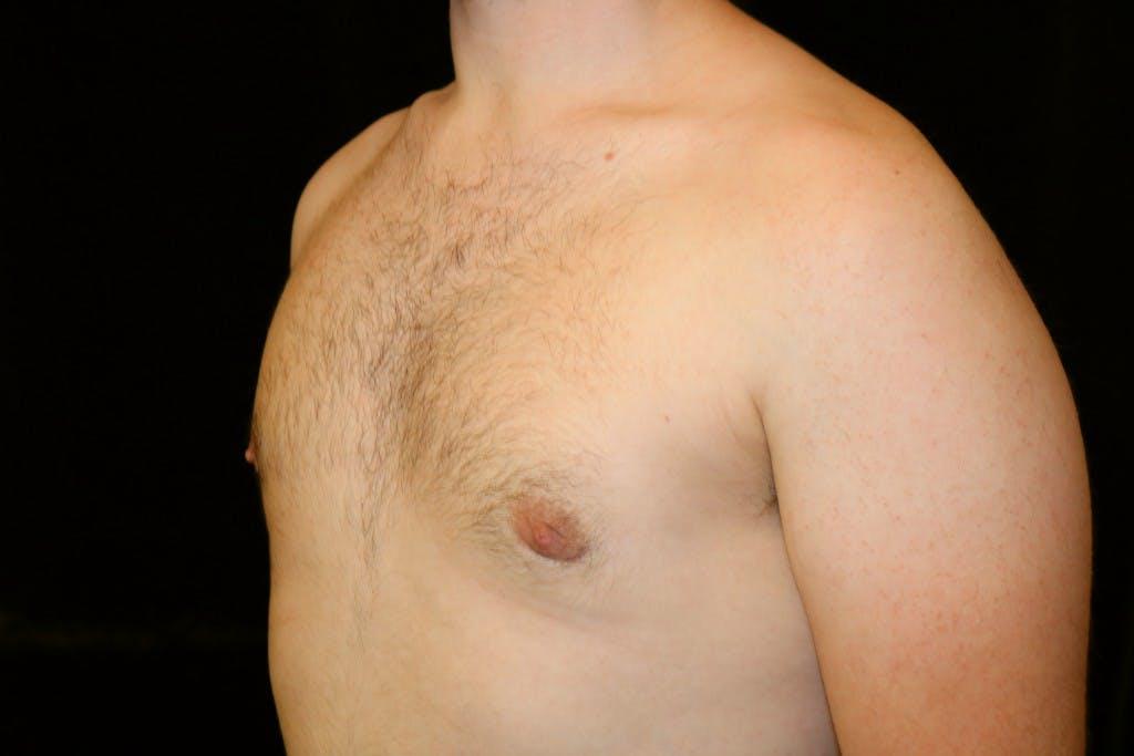 Gynecomastia Gallery - Patient 39245453 - Image 6