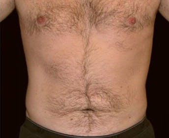 Liposuction Gallery - Patient 39245451 - Image 2