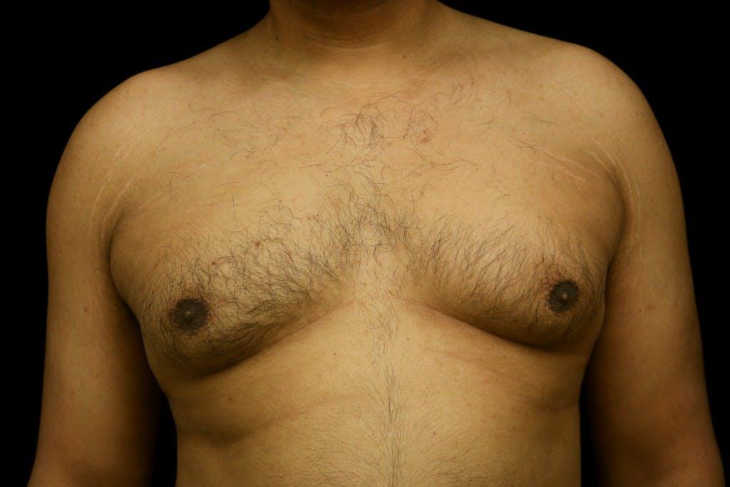 Gynecomastia Gallery - Patient 39245470 - Image 1