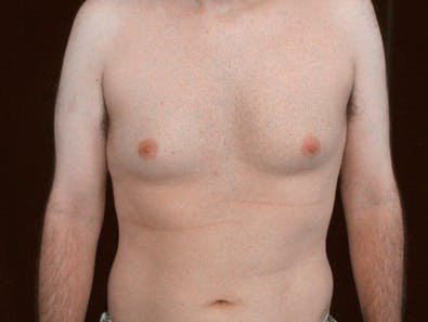 Daddy Makeover Gallery - Patient 39245457 - Image 1