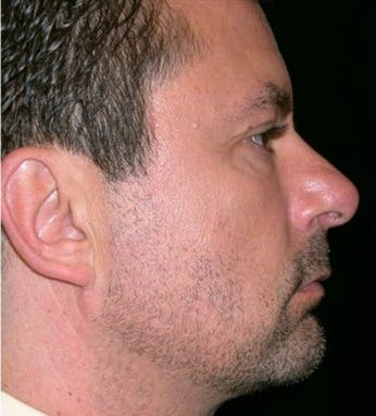 Chin Augmentation Gallery - Patient 39245458 - Image 2