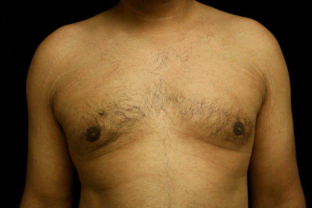 Gynecomastia Gallery - Patient 39245470 - Image 2