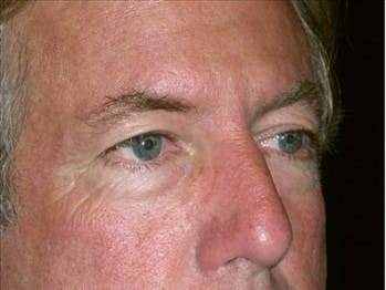 Eyelid Surgery Gallery - Patient 39245463 - Image 1