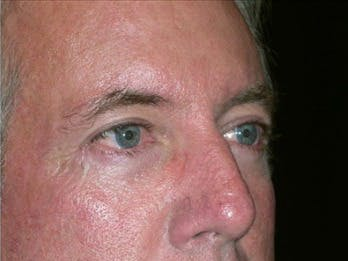 Eyelid Surgery Gallery - Patient 39245463 - Image 2