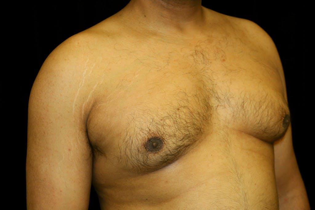 Gynecomastia Gallery - Patient 39245470 - Image 3