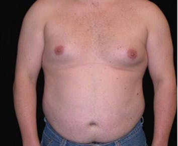 Liposuction Gallery - Patient 39245466 - Image 1