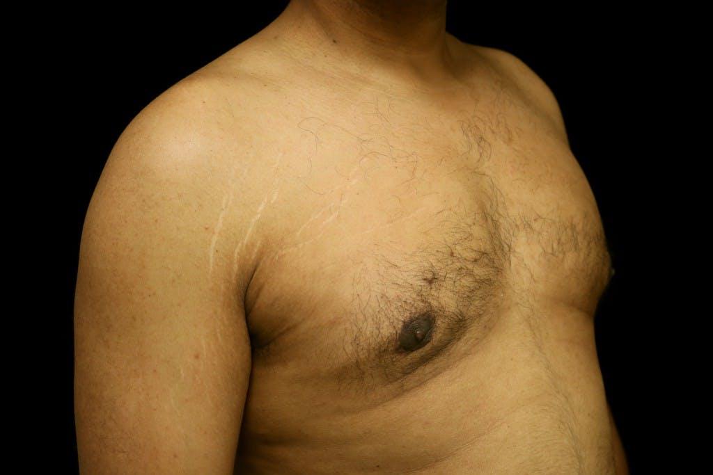 Gynecomastia Gallery - Patient 39245470 - Image 4