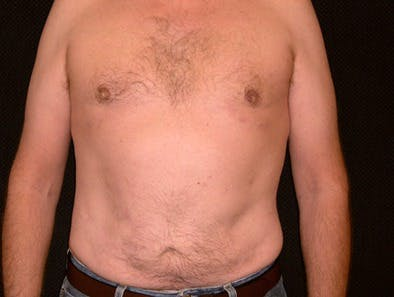 Daddy Makeover Gallery - Patient 39245469 - Image 2