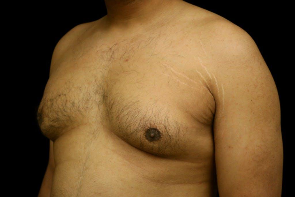 Gynecomastia Gallery - Patient 39245470 - Image 5