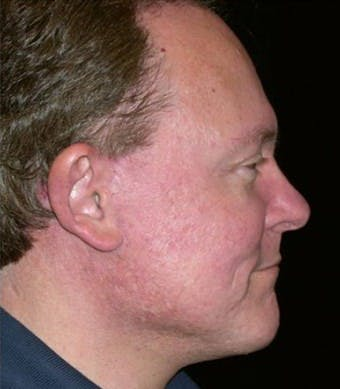 Chin Augmentation Gallery - Patient 39245468 - Image 2