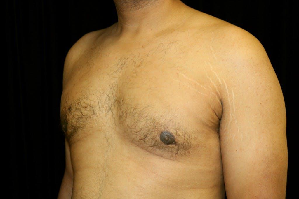 Gynecomastia Gallery - Patient 39245470 - Image 6