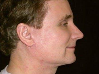 Facelift Gallery - Patient 39245471 - Image 2