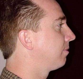 Chin Augmentation Gallery - Patient 39245474 - Image 1