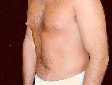 Daddy Makeover Gallery - Patient 39245475 - Image 1