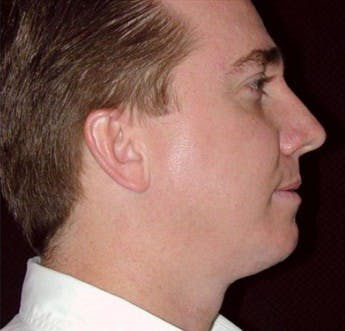 Chin Augmentation Gallery - Patient 39245474 - Image 2