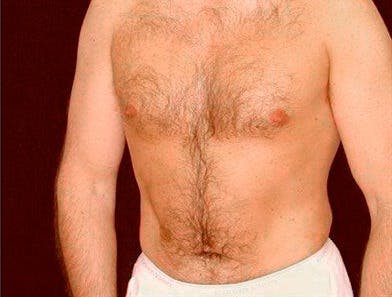 Daddy Makeover Gallery - Patient 39245475 - Image 2