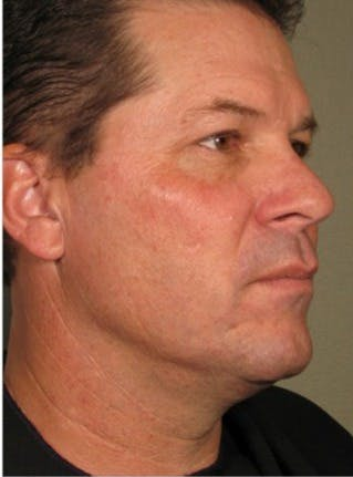 Ultherapy Gallery - Patient 39245476 - Image 2
