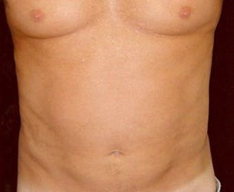 Liposuction Gallery - Patient 39245478 - Image 2