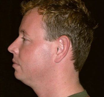 Chin Augmentation Gallery - Patient 39245480 - Image 1