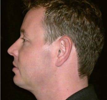 Chin Augmentation Gallery - Patient 39245480 - Image 2