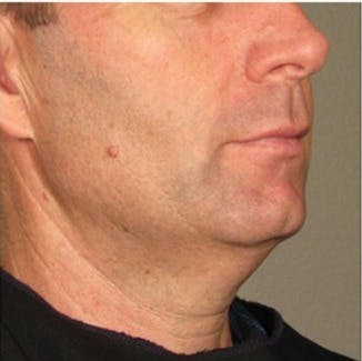 Ultherapy Gallery - Patient 39245484 - Image 1