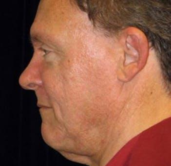 Facelift Gallery - Patient 39245486 - Image 1