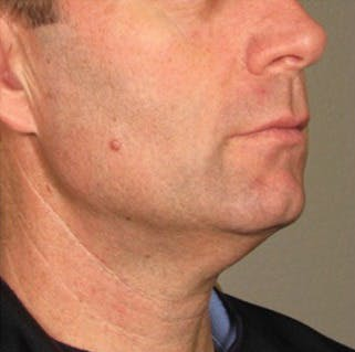 Ultherapy Gallery - Patient 39245484 - Image 2