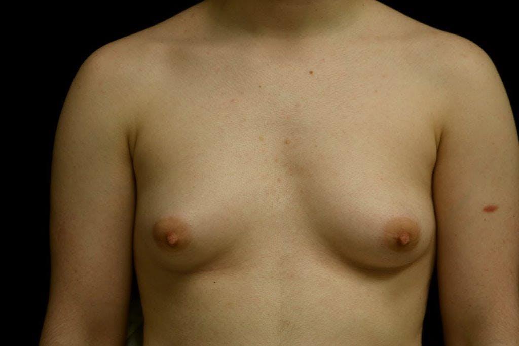 FTM Surgery Gallery - Patient 39245487 - Image 1
