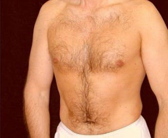 Liposuction Gallery - Patient 39245485 - Image 2
