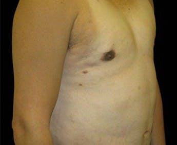 Liposuction Gallery - Patient 39245491 - Image 2