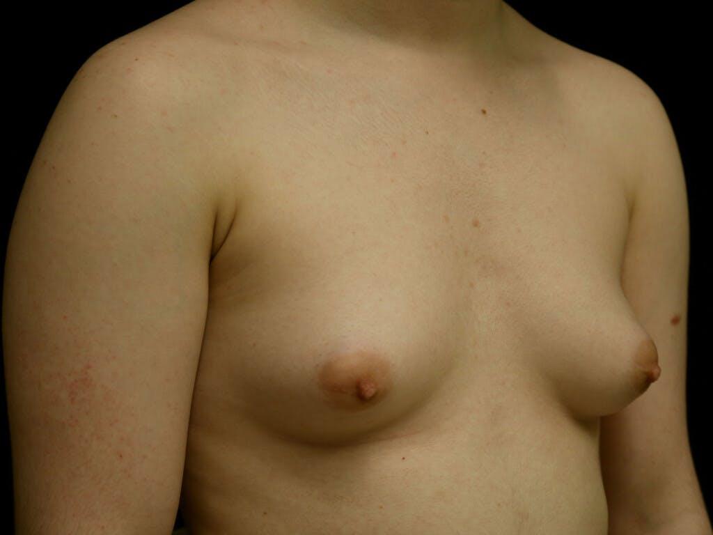 FTM Surgery Gallery - Patient 39245499 - Image 3