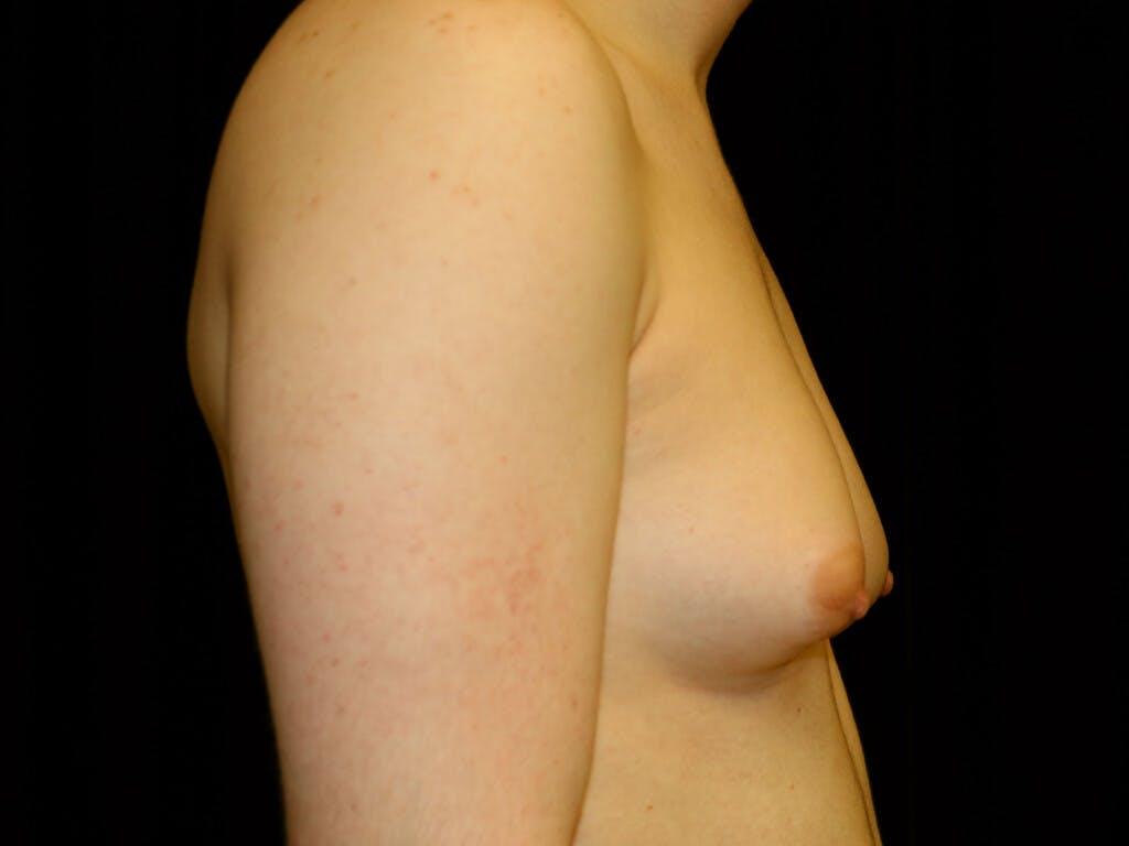 FTM Surgery Gallery - Patient 39245499 - Image 5