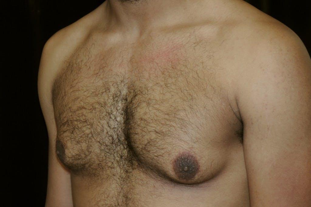 Gynecomastia Gallery - Patient 39245498 - Image 5