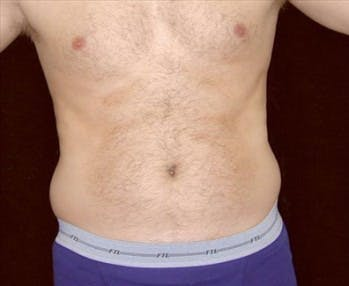 Liposuction Gallery - Patient 39245496 - Image 1