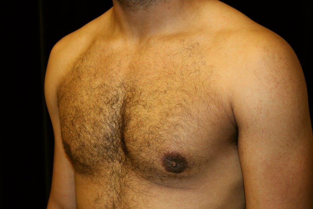 Gynecomastia Gallery - Patient 39245498 - Image 6