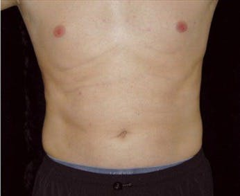 Liposuction Gallery - Patient 39245496 - Image 2